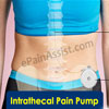 Intrathecal Pain Pump: Post-Surgical Complications