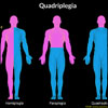 Quadriplegia or Tetraplegia: Causes, Signs, Symptoms, Treatment- Surgery