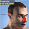 Relapsing Polychondritis: Causes, Symptoms, Diagnosis, Treatment