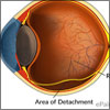 Retinal Detachment: Causes, Symptoms, Treatment- Ultrasound, Surgery