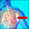 Rib Fracture or Broken Rib: Causes, Symptoms, Diagnosis, Treatment- Ice, NSAIDs