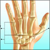 Rolando Fracture: Causes, Signs, Symptoms, Treatment, Exercises, Investigations