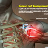Rotator Cuff Impingement: Symptoms, Causes, Treatment, Prognosis