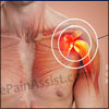 Shoulder Popping: Causes and Treatment