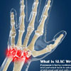SLAC Wrist: Causes, Symptoms, Staging, Treatment, Surgery, Prevention