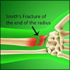 Smith Fracture or Reverse Colles Fracture: Causes, Symptoms, Treatment- Surgery, PT