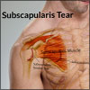 Subscapularis Tear: Causes, Symptoms, Signs, Treatment, Diagnosis, Investigations