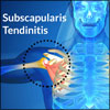 Subscapularis Tendinitis: Causes, Symptoms, Treatment, Recovery, FAQ on Subscapularis Tendon Repair Surgery