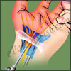 Surgery for Carpal Tunnel Syndrome & its Recovery Time