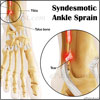 Syndesmotic Sprain or Syndesmotic Ankle Sprain: Causes, Symptoms, Treatment, Exercise, Recovery Period