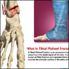 Tibial Plafond Fracture: Classifications, Symptoms, Treatment, Signs, Diagnosis