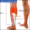 Tight Calf Muscles: Causes, Treatment- Stretching Exercises, Gastrocnemius, Soleus