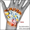 Torn Ligament in Wrist: Symptoms, Treatment, Surgery