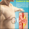 Treatment for Epigastric Hernia & its Recovery Period, Risk Factors