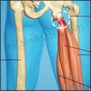 Treatment for Hamstring Tendon Rupture|Surgical|Non Surgical