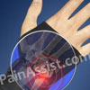 Treatment for Ulnar Impaction Syndrome or Ulnar Abutment Syndrome & its Recovery Period
