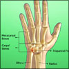 Triquetral Fracture: Causes, Signs, Symptoms, Treatment, Exercises, Investigations