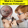 Tympanic Membrane Perforation: Causes, Symptoms, Treatment, Complications, Diagnosis