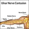 Ulnar Nerve Contusion: Symptoms, Causes, Treatment- Cold Therapy, Cast, Exercises