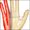 Ulnar Nerve Injury