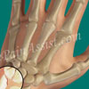 Ulnar Styloid Fracture: Treatment, Exercise, Rehab, Causes, Symptoms