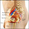 Urinary Bladder Rupture: Causes, Types, Symptoms, Diagnosis, Treatment