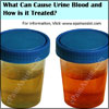 What Can Cause Urine Blood and How is it Treated?