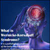 What is Wernicke-Korsakoff Syndrome & How is it Treated?