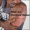 What are Electrical Burns: Signs, Symptoms, First Aid, Treatment, Types, Healing Time, Pathophysiology, Causes