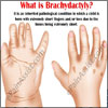 What Causes Brachydactyly & What is Its Treatment?
