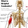 What is Bicipital Tendonitis: Causes, Symptoms, Treatment, Exercises, Pathophysiology, Epidemiology