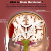 What is Brain Herniation & How is it Treated?