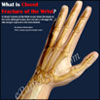 What is Closed Fracture of the Wrist, Know its Treatment, Recovery Period, Causes, Symptoms