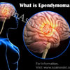 What is Ependymoma: Types, Causes, Symptoms, Treatment, Prognosis
