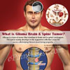 What is Glioma Brain & Spine Tumor, Know its Causes, Symptoms, Treatment, Prognosis, Complications