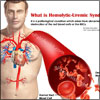 What is Hemolytic-Uremic Syndrome, Know its Causes, Symptoms, Treatment