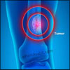 What is Osteoid Osteoma, Know its Symptoms & Treatment