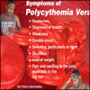 What is Polycythemia Vera: Causes, Symptoms, Treatment, Life Expectancy, Prognosis