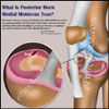 What is Posterior Horn Medial Meniscus Tear: Causes, Symptoms, Treatment, Recovery