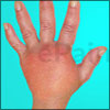 Reflex Sympathetic Dystrophy--How Common is It And What Are Its Triggers?