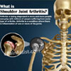 What is Shoulder Joint Arthritis: Types, Signs, Symptoms, Treatment, Surgery, Recovery