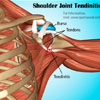 What is Shoulder Joint Tendinitis: Causes, Symptoms, Treatment, Prognosis, Exercise, Prevention