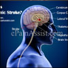 What is Thalamic Stroke: Causes, Symptoms, Treatment, Recovery Period, Prognosis, Prevention, Coping