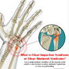 What is Ulnar Impaction Syndrome or Ulnar Abutment Syndrome?