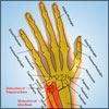 Wrist Dislocation: Types, Causes, Signs, Symptoms, Treatment, Exercises, Investigations