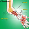Wrist Joint Tendonitis: Causes, Symptoms, Treatment-Medications, PT, Surgery