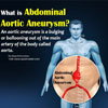 What is Abdominal Aortic Aneurysm & How is it Repaired?