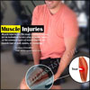 About Muscle Injuries & its Types, Causes