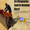 Are Chiropractors Good For Herniated Discs?