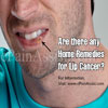 Are There Any Home Remedies For Lip Cancer?